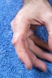Piel agrietada, escamosa en la palma de su mano Problemas dermatológicos del psoriasis imagen de archivo
