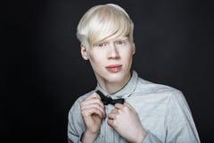 Piel del blanco del hombre del albino Imagen de archivo libre de regalías