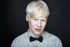 Piel del blanco del hombre del albino Imágenes de archivo libres de regalías