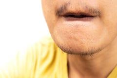 Piel en la barbilla de un hombre imagen de archivo libre de regalías