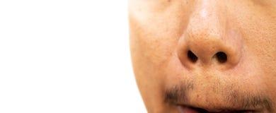 Piel en la nariz de un hombre foto de archivo