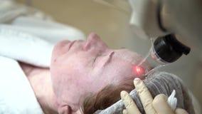 Piel facial del laser que vuelve a allanar en una clínica médica almacen de metraje de vídeo