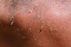 Piel humana bronceada con quemaduras, cierre para arriba Foto de archivo