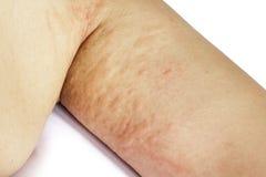 Piel impetuosa alérgica del brazo paciente Imagen de archivo libre de regalías