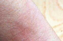 Piel impetuosa alérgica del eczema del dermatitis Fotos de archivo libres de regalías