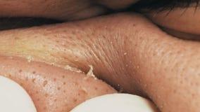 Piel masculina no preparada y ditry con acnés, macro almacen de metraje de vídeo
