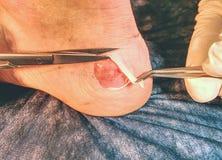 Piel muerta cortada doctor en la pierna Ampolla terrible de Craced en el talón humano Fotografía de archivo
