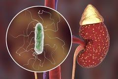 Pielonefritis, concepto médico, y opinión del primer bacterias fotos de archivo