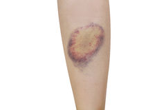 pierna de la contusión en el fondo blanco Imagen de archivo