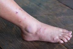 Pierna de la herida, síndrome diabético del pie fotos de archivo