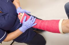 Pierna de las señoras en el molde que es tratado por una enfermera Imagen de archivo libre de regalías