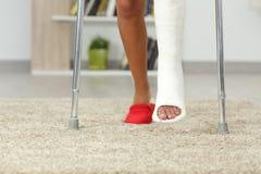 Piernas de la mujer discapacitada con el pie del yeso que camina en casa Fotos de archivo libres de regalías