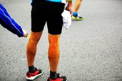 Piernas heridas del corredor de maratón Imágenes de archivo libres de regalías