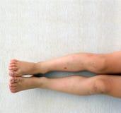 Piernas heridas muchacho Imagen de archivo libre de regalías