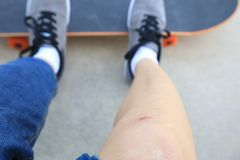 Piernas heridas skater mientras que anda en monopatín foto de archivo