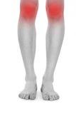 Piernas y rodillas de la enfermedad foto de archivo libre de regalías