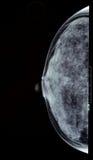 Piersi promieniowanie rentgenowskie Obrazy Royalty Free