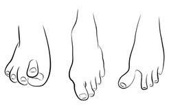 Pies anormales ilustración del vector