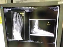 Pies de la radiografía Fotografía de archivo