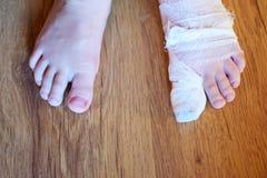 Pies del niño pequeño con el pie izquierdo vendado fotos de archivo