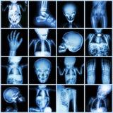 Pieza de la radiografía de la colección del cuerpo del niño Imagenes de archivo