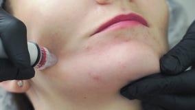 Pieza del primer de la cara de la mujer en el procedimiento de peladura hidráulico facial en clínica de la cosmetología, trata almacen de video