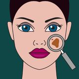 Pigment spot. On female face under  magnifying glass. Vector illustration Stock Photo