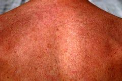 Pigmentatie op de schouders en de rug Bruine huid met vlekken freckles stock foto's