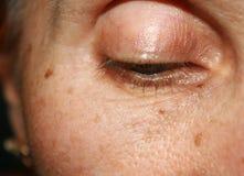 Pigmentatie op het gezicht Bruine vlek Rimpels op het ooglid en onder het oog stock foto