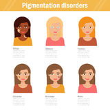 Pigmentation disorders. Isolated art Stock Photography