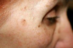 pigmentation peau visage