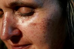 Pigmented spots on the face. Pigmentation on cheeks.  stock image