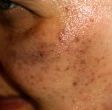 Pigmented spots on the face. Pigmentation on cheeks Royalty Free Stock Images