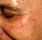 Pigmented spots on the face. Pigmentation on cheeks.  royalty free stock photos
