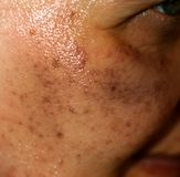 Pigmented spots on the face. Pigmentation on cheeks royalty free stock image