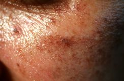 Pigmented spots on the face. Pigmentation on cheeks.  stock photos
