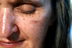 Pigmented spots on the face. Pigmentation on cheeks.  royalty free stock images