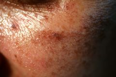 Pigmented spots on the face. Pigmentation on cheeks.  stock images