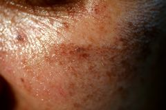 Pigmented spots on the face. Pigmentation on cheeks.  royalty free stock photo