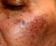 Pigmented spots on the face. Pigmentation on cheeks.  royalty free stock photography