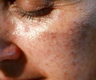 Pigmented spots on the face. Pigmentation on cheeks stock image