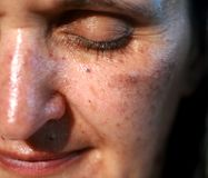 Pigmented spots on the face. Pigmentation on cheeks.  stock photo