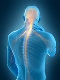 Pijn in de Hals stock illustratie