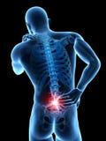 Pijn in de rug vector illustratie