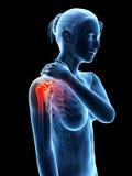 Pijn in de schouderverbinding Stock Fotografie