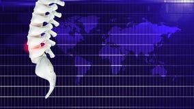 Pijn in het been of bureausyndroom, of veroorzaakt door het verlengde werk stock illustratie