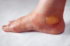 Pijnlijke blaar op de gebrande voet stock fotografie