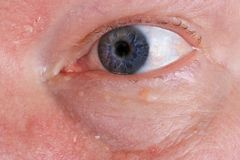 Pijnlijke droge huid en blind oog op het gezicht van een oud bejaarde royalty-vrije stock foto's
