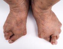Pijnlijke jichtontsteking van voet stock afbeelding