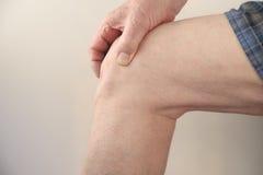 Pijnlijke knie Stock Afbeelding